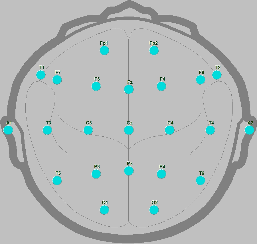 Międzynarodowy Układ Elektrod EEG 10-20